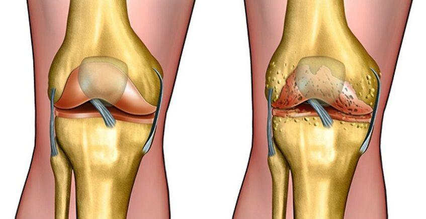cu artroza genunchiului  articulațiile se schimbă sau nu